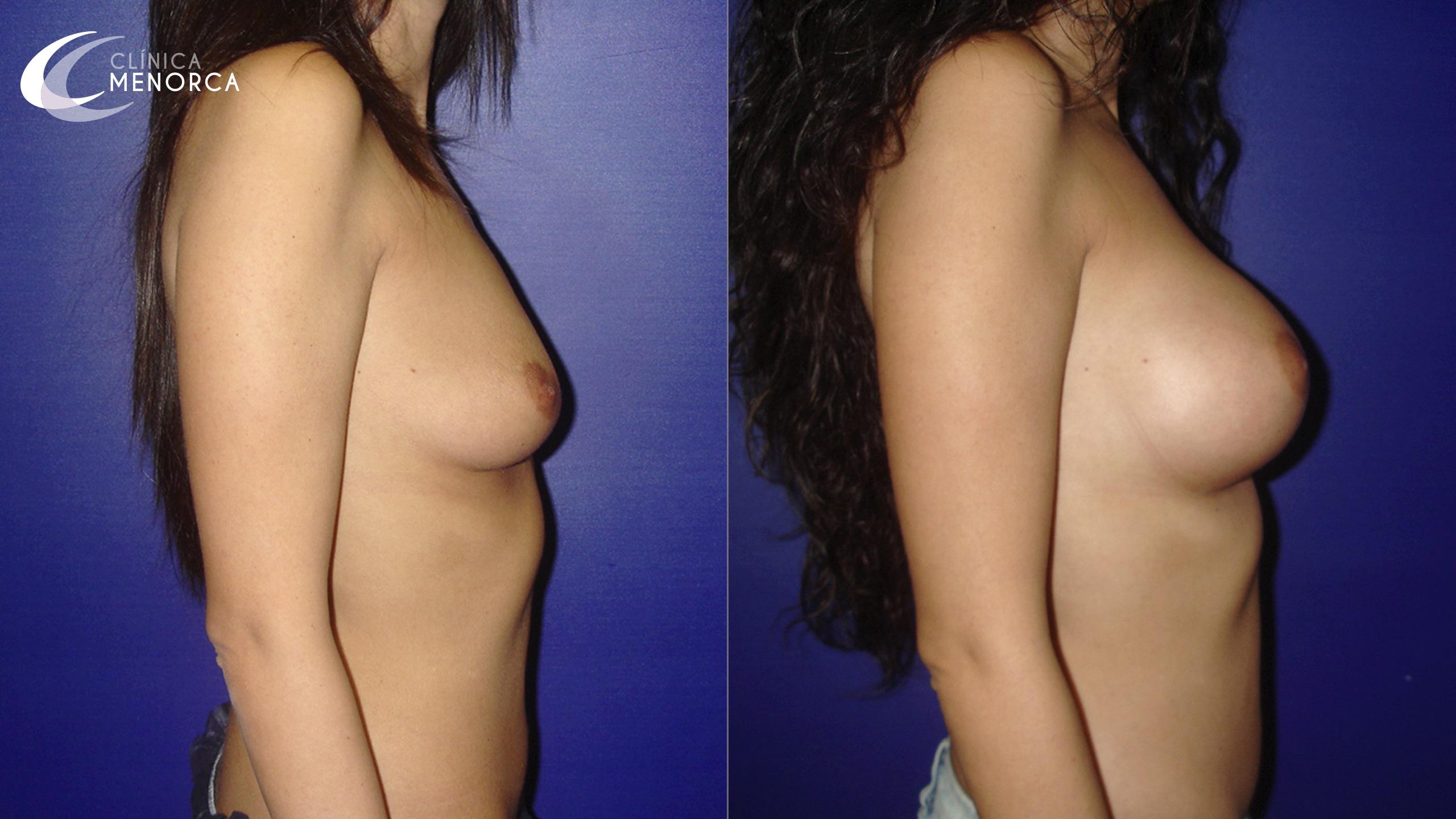 Operación de pecho antes y después