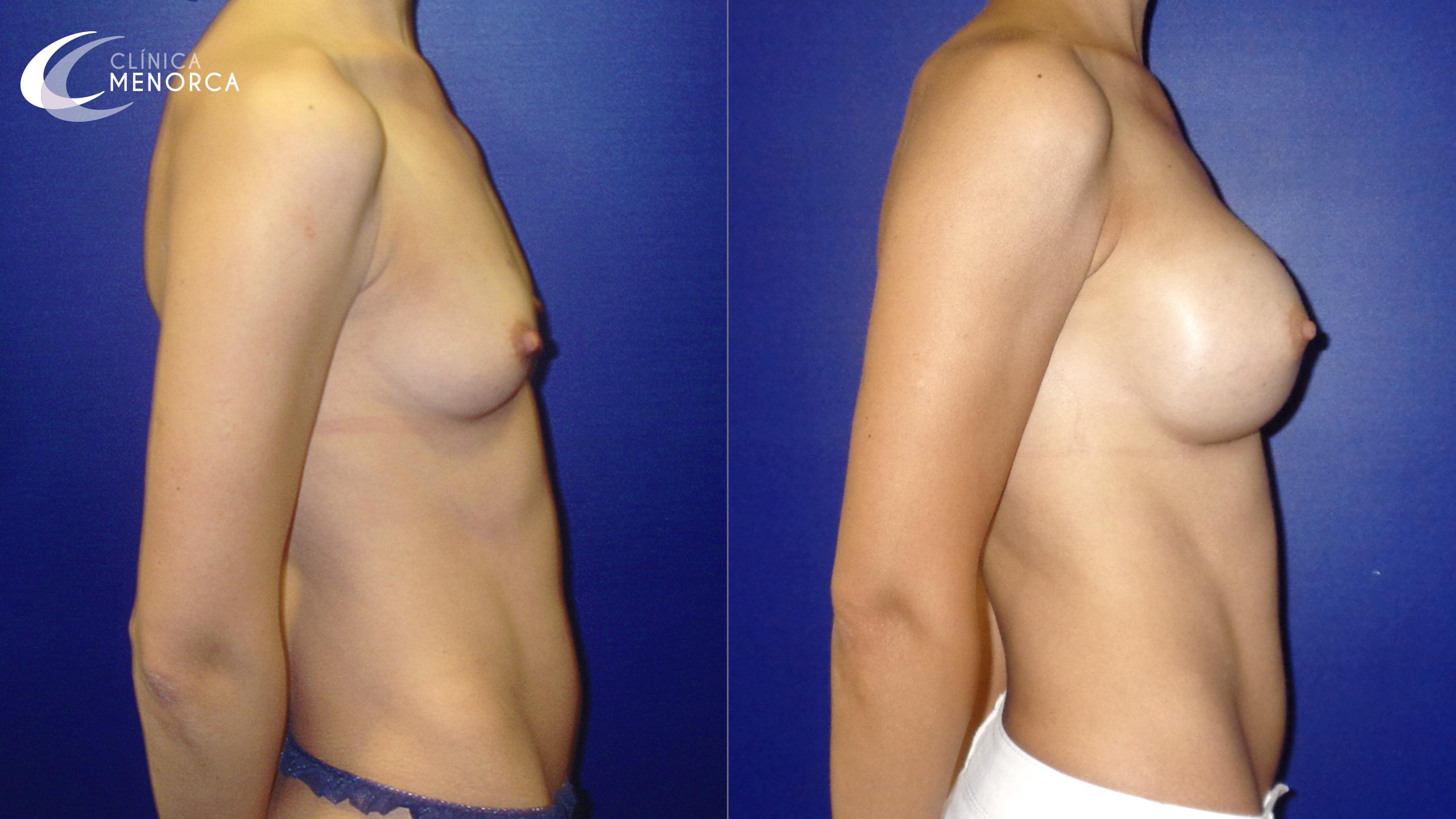 Fotos de antes y después de operación de aumento de pechos