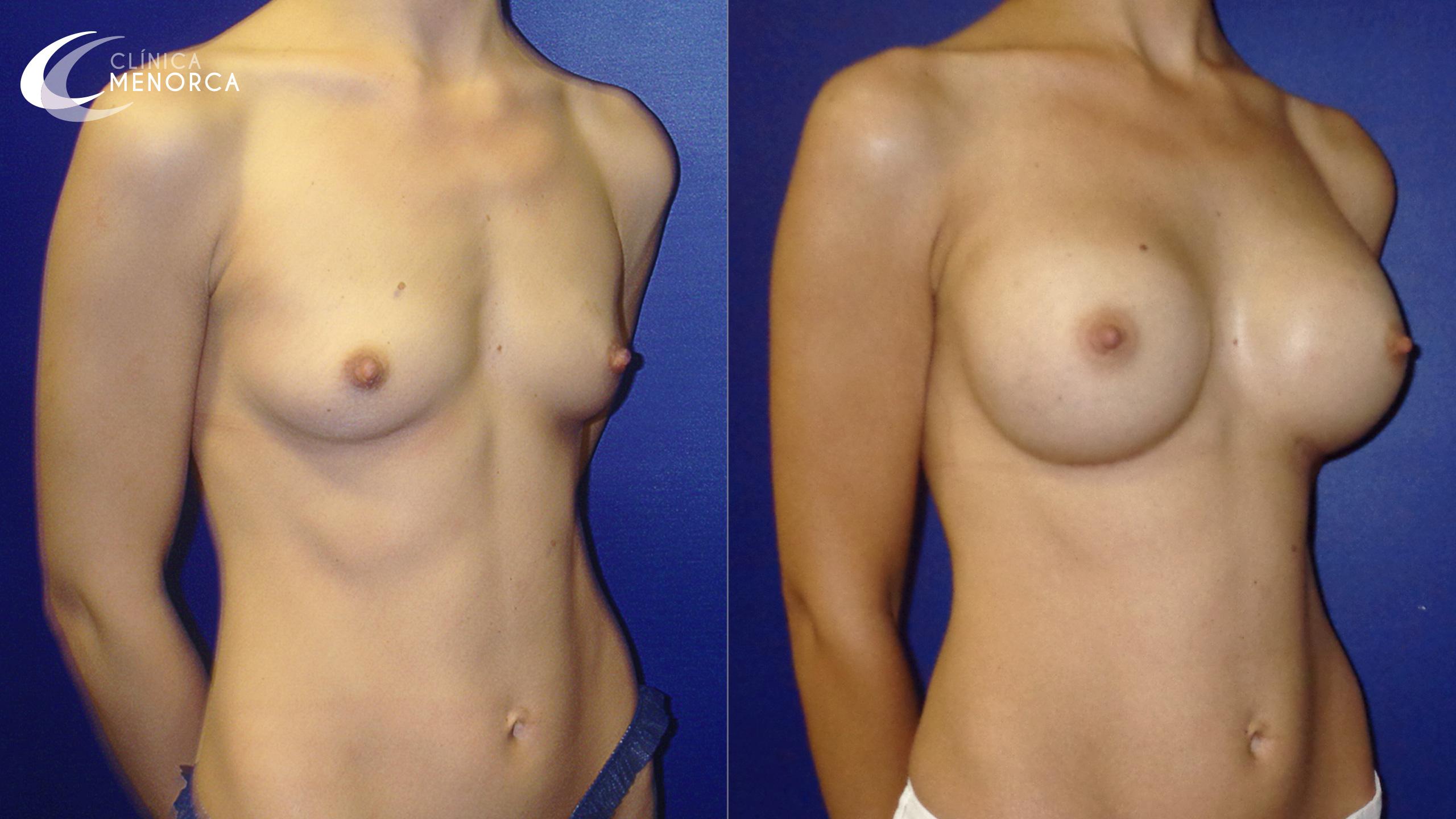 Foto de antes y después de una operación de aumento de pechos
