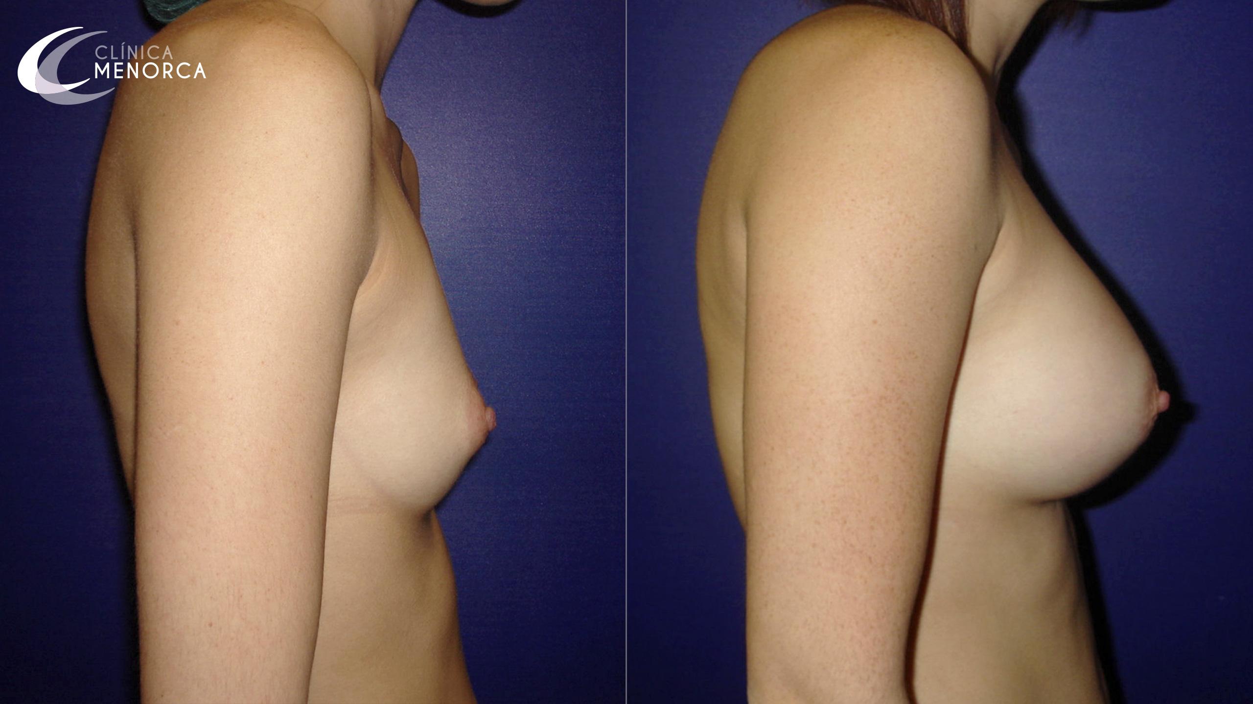 Foto antes y después de aumento de mamas
