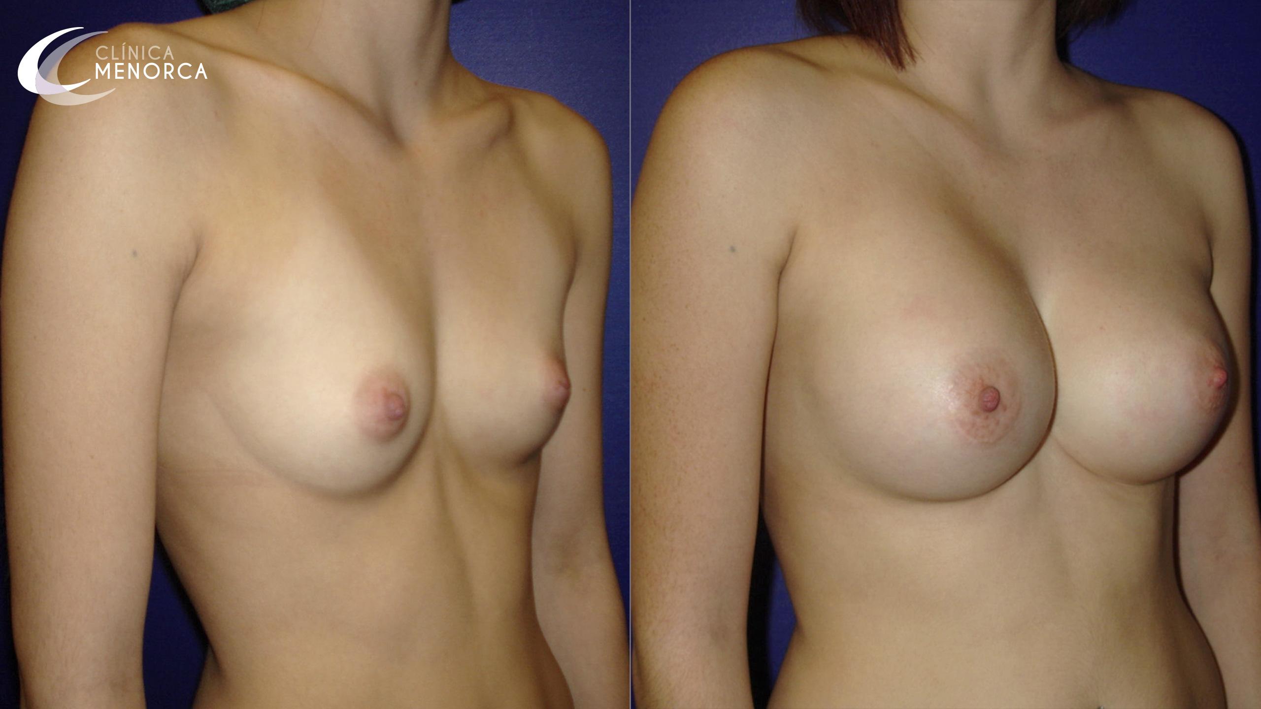 Fotos de antes y después de un aumento de senos.