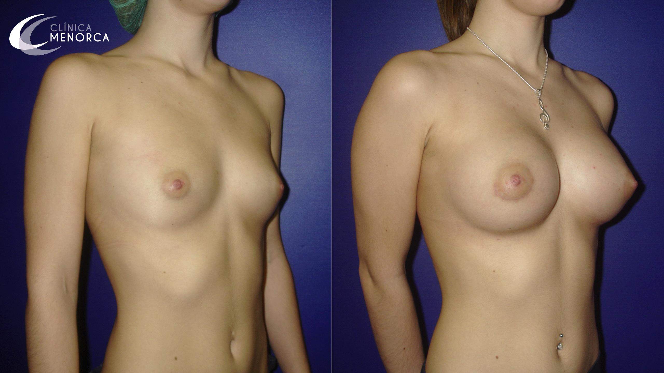 Foto de antes y después de un aumento de pecho