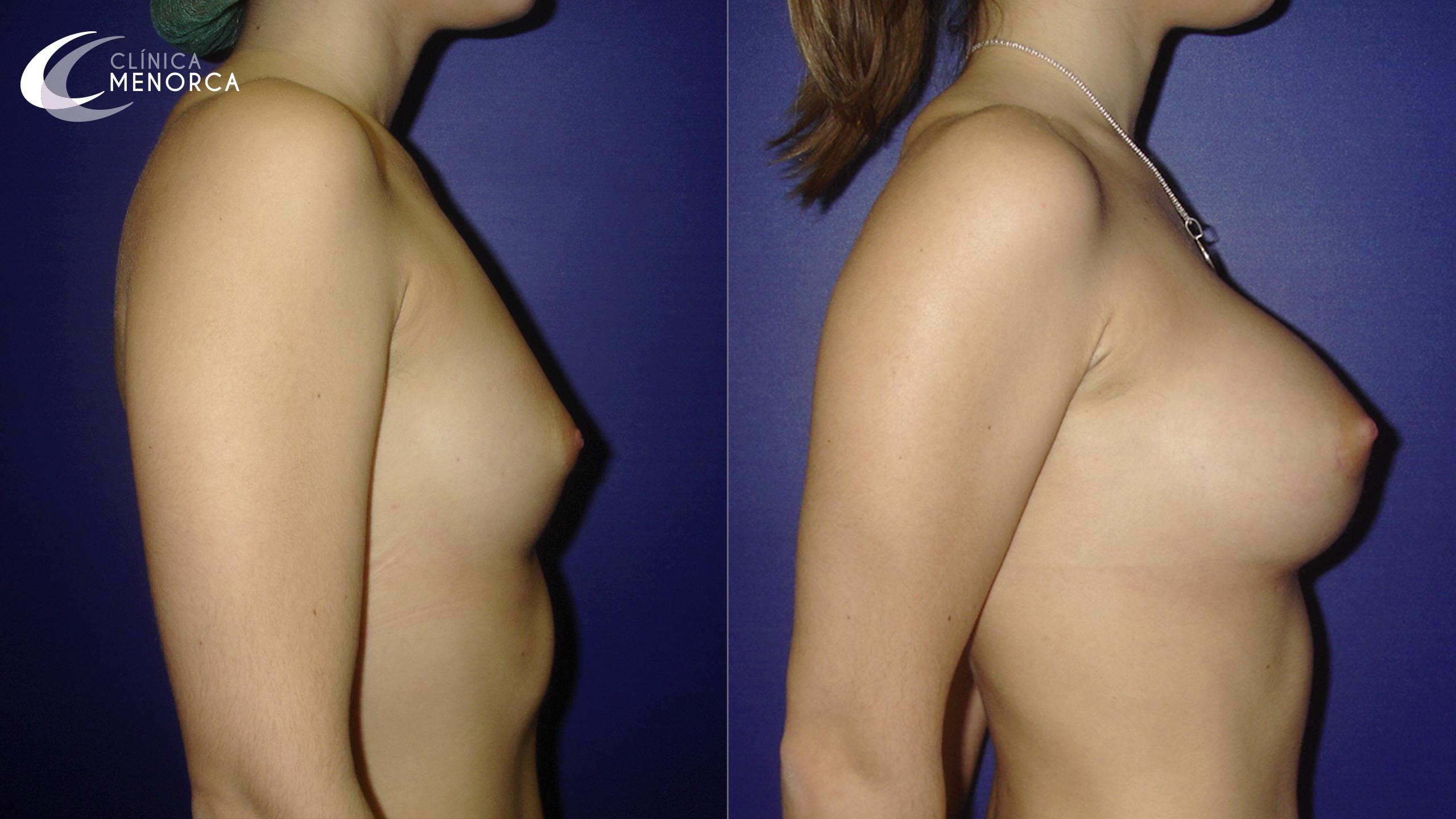 Ejemplo real de aumento de pecho antes y después