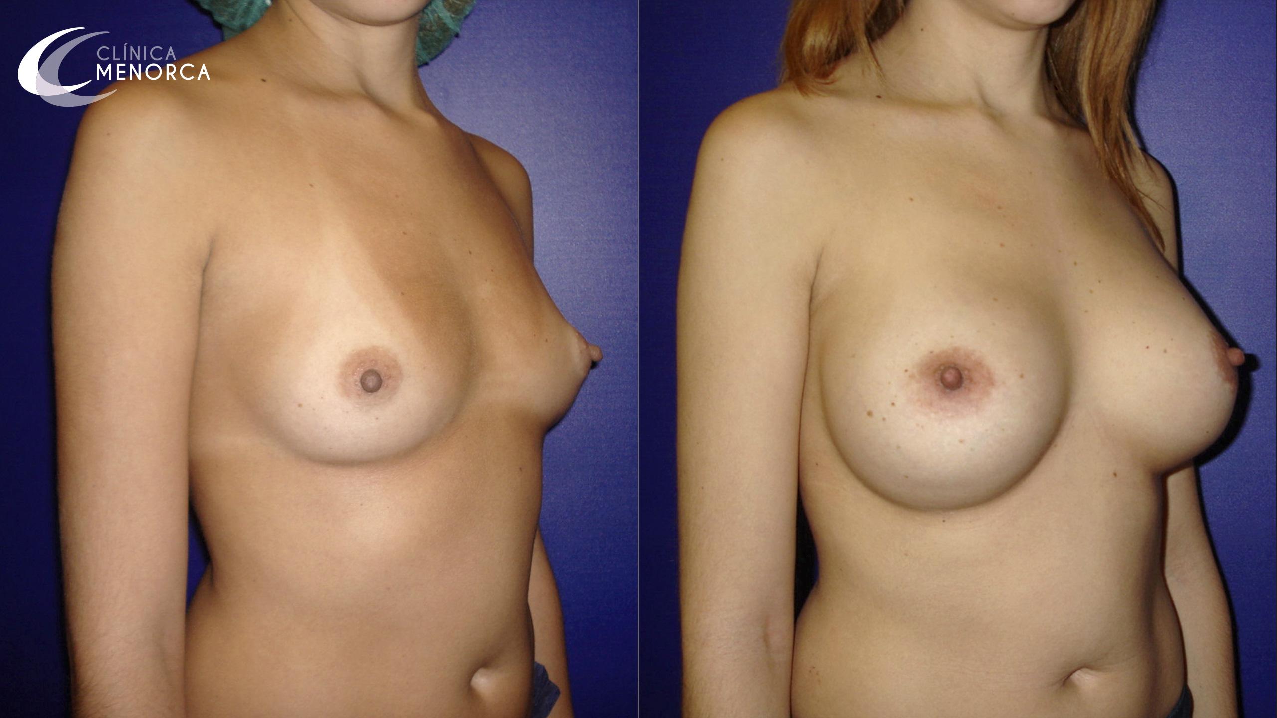 Aumento de senos antes y después en Clínica Menorca