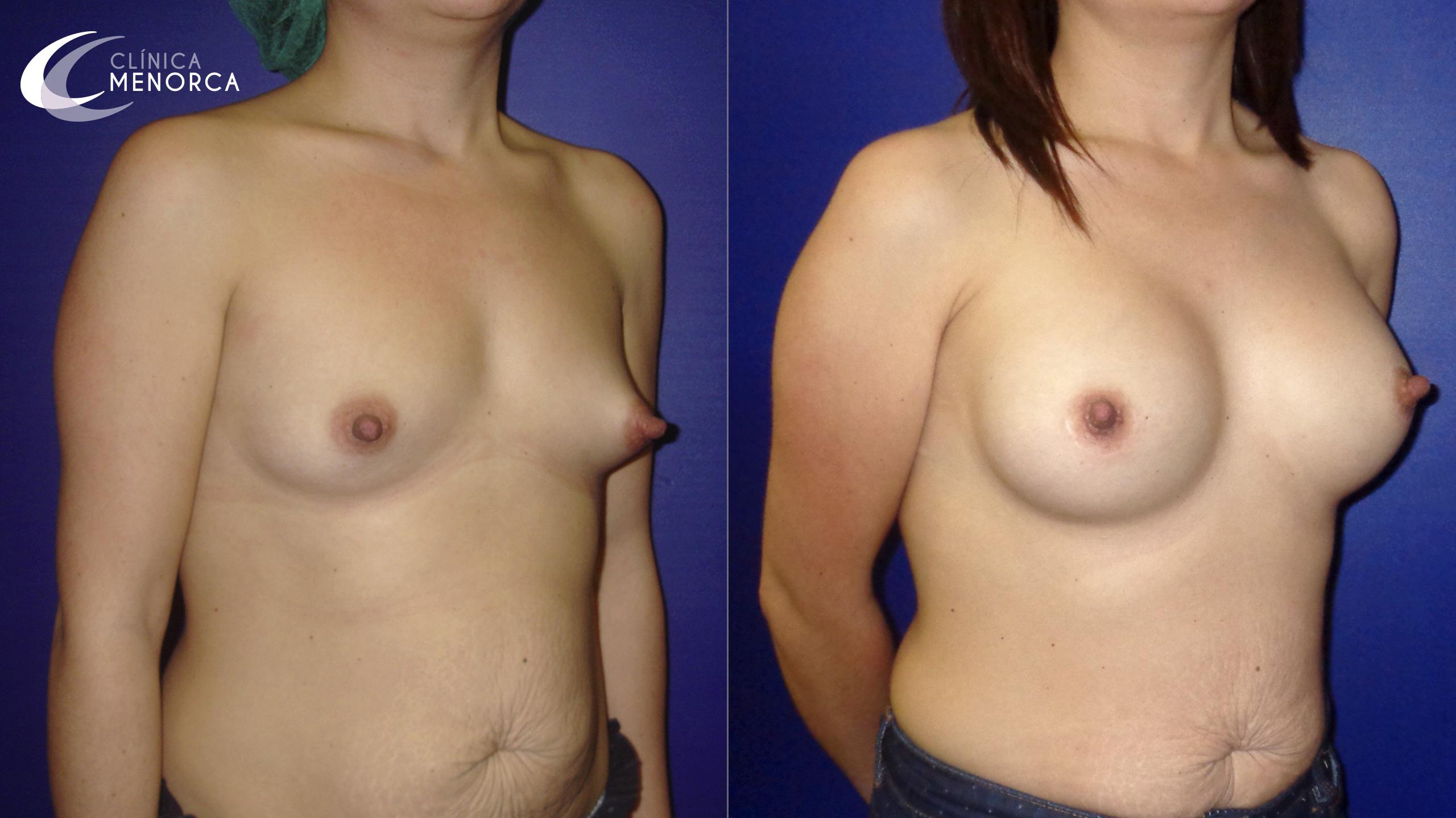 Fotos de antes y después de los implantes mamarios