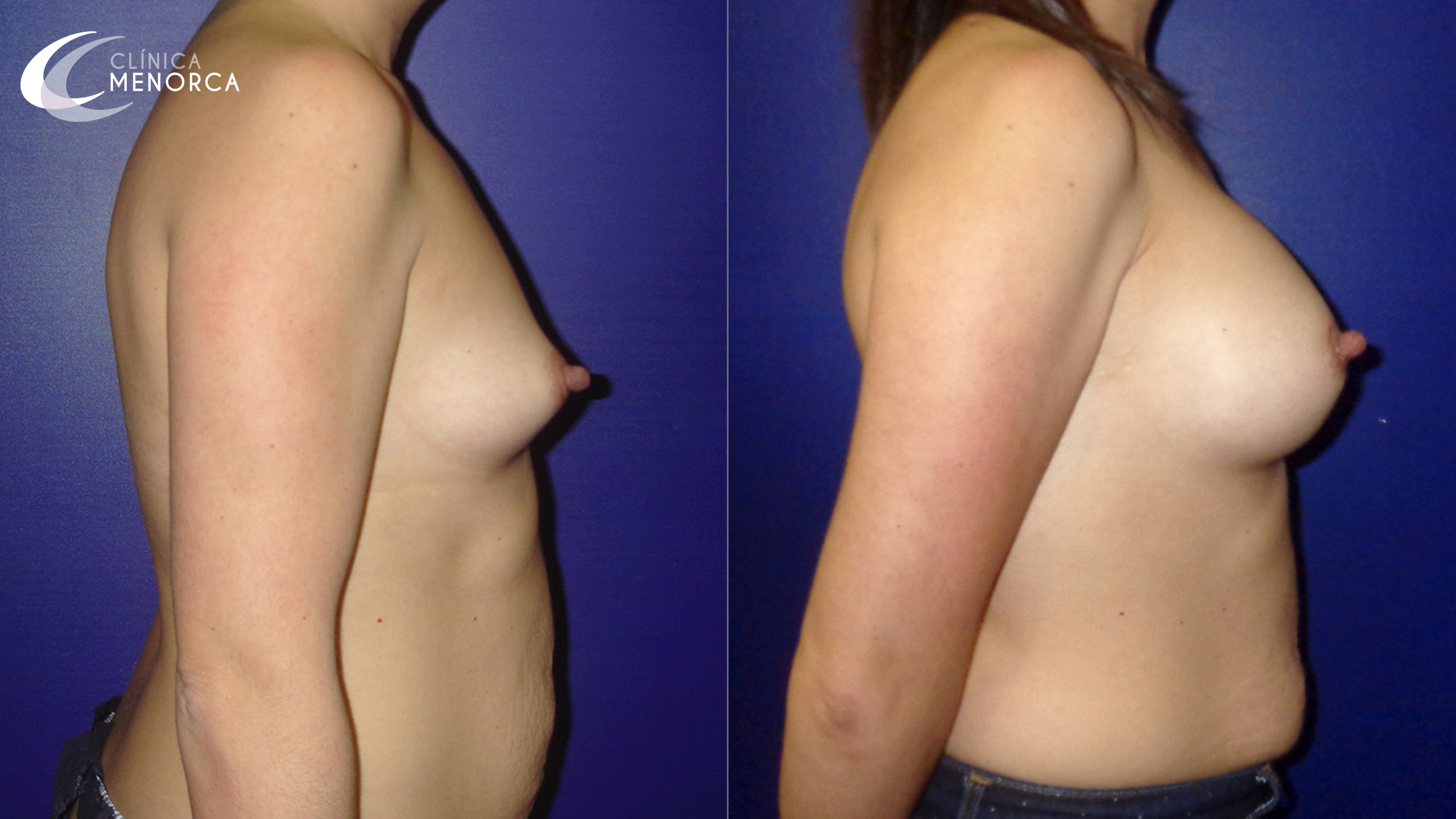Pechos antes y después de un aumento de senos