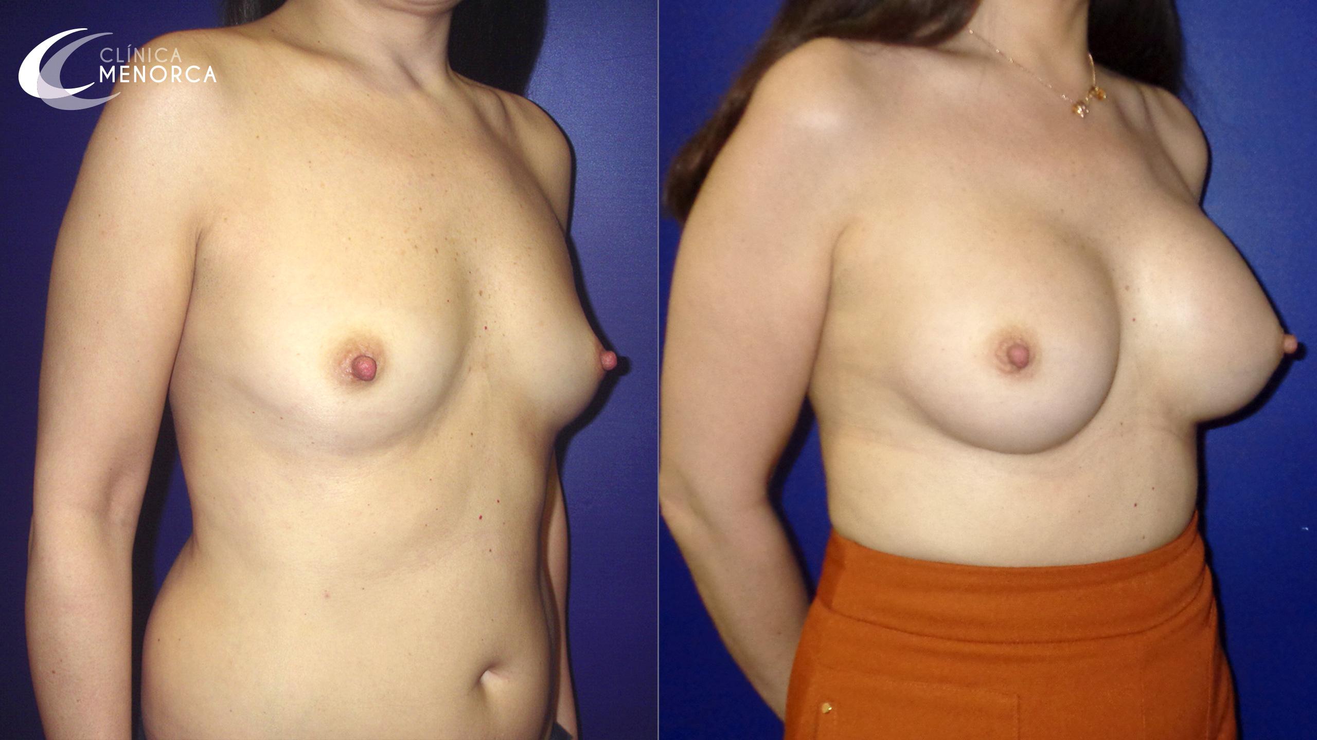 Pechos operados fotos de antes y después