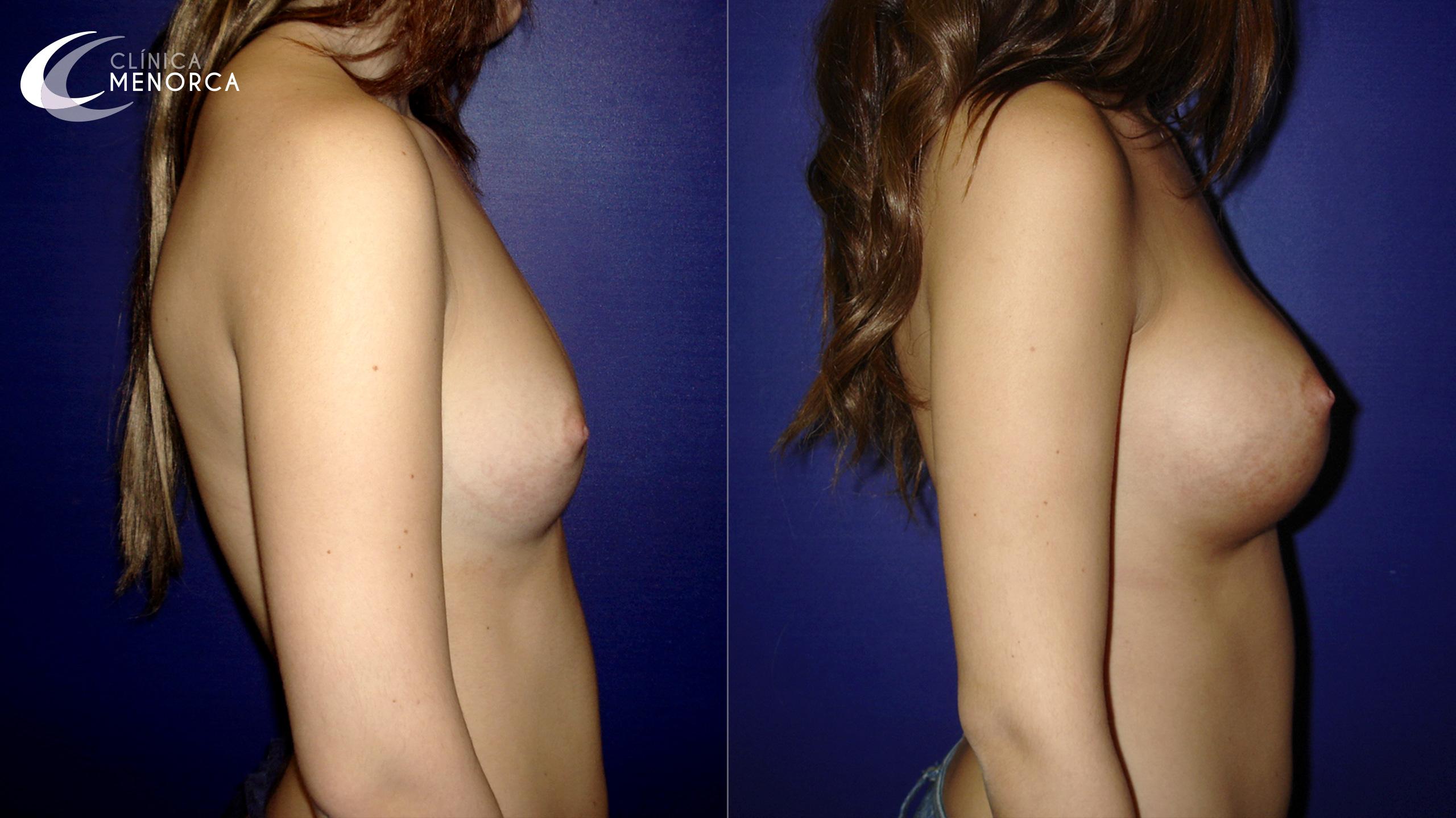 Fotos pechos operados