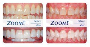 Zoom WhiteSpeed - Antes y Despues - Blanqueamiento Dental