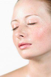 Peelings exfoliantes, cosméticos despigmentantes y láser para la elinación de manchas