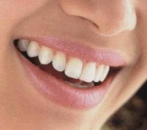 odontologia-protesis-dentales_96cc71ce_3