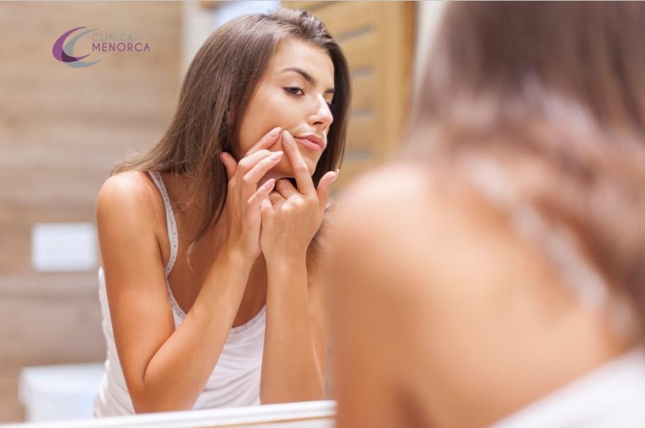 acné en adultos