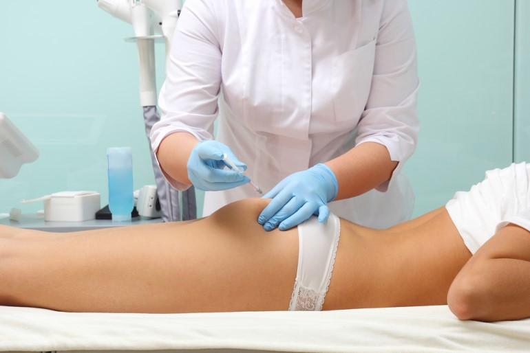 Tratamiento de mesoterapia