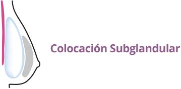 Colocacion implantes mamarios subglandular