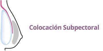 Colocación implantes mamarios subpectoral