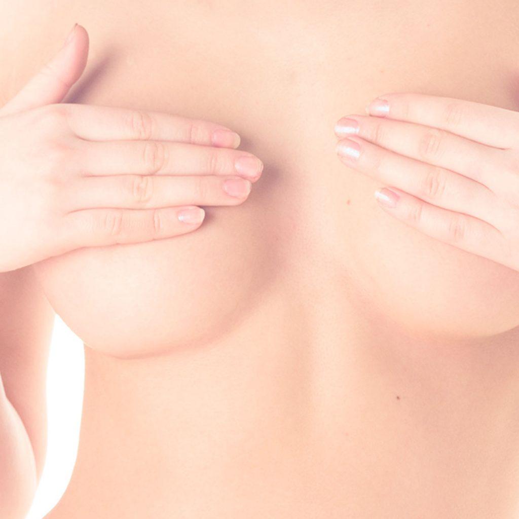 Elevación de mamas en Clínica Menorca