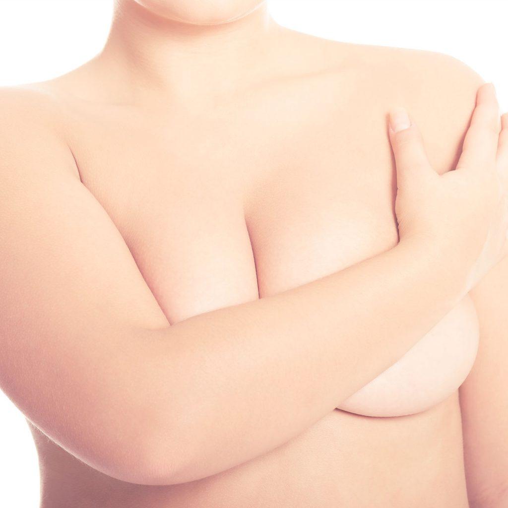 Reducción de mamas o de pecho en madrid