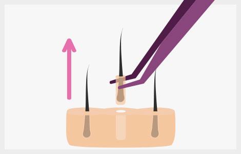 Proceso Capilar FUE extracción de folículos
