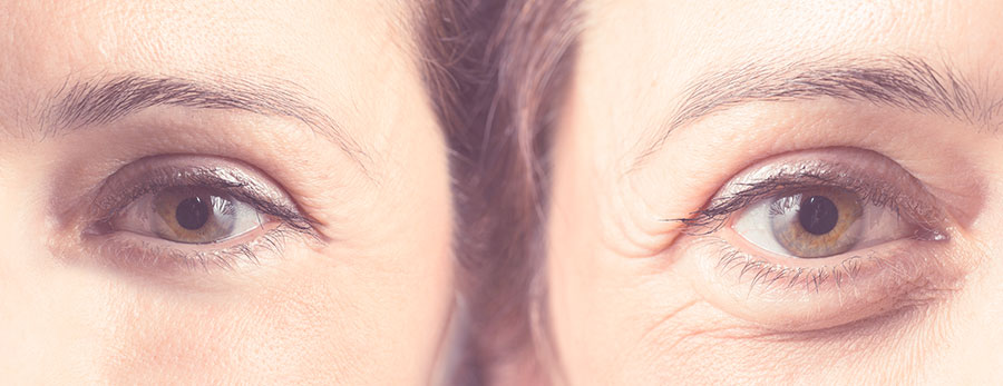 Servicio de análisis facial en clínica menorca