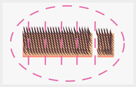microinjerto capilar sin rapar