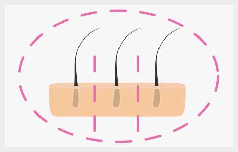 tercer paso durante el trasplante capilar fuss