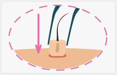 Extracción de cada folículo durante la técnica fuss