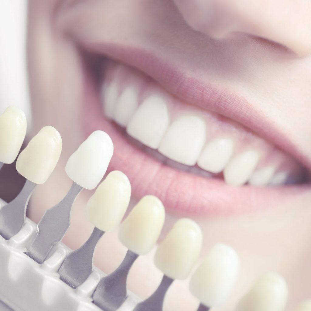 tipos de tratamiento para blanqueamiento dental
