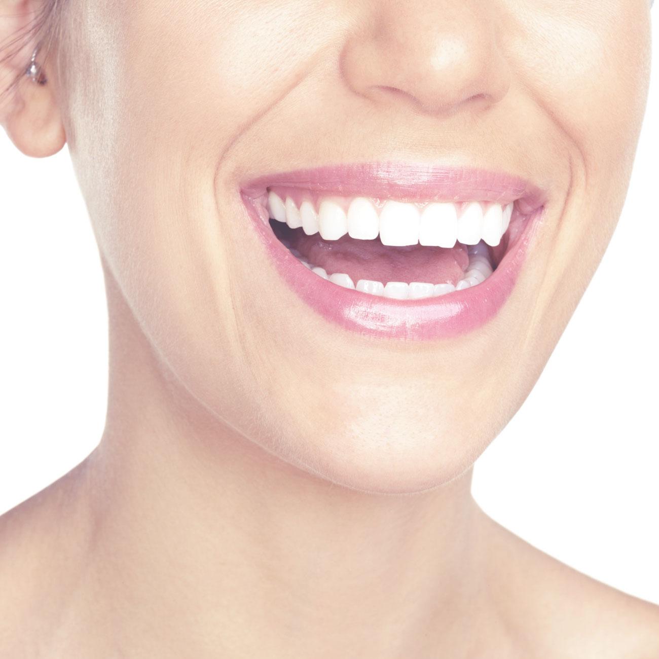 Diseño de la sonrisa en 3d