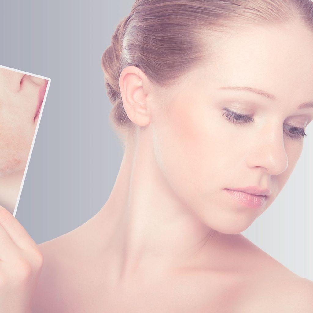 Tratamiento láser para eliminar cicatrices de acné
