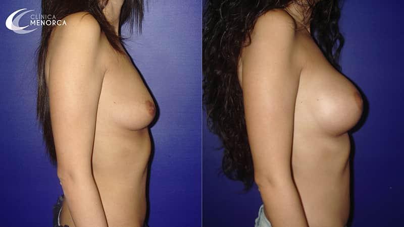 resultado despues aumento de pechos en madrid
