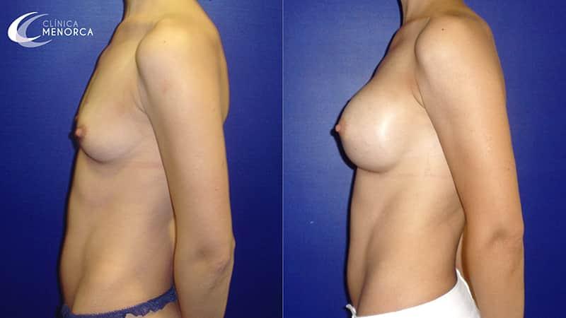 fotos después de aumento de pechos