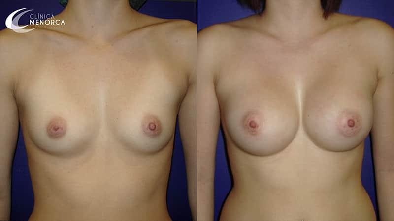 fotos aumento de senos en madrid