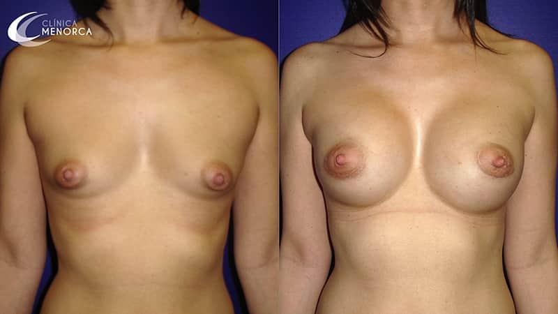 Resultados con fotos de aumento de pecho