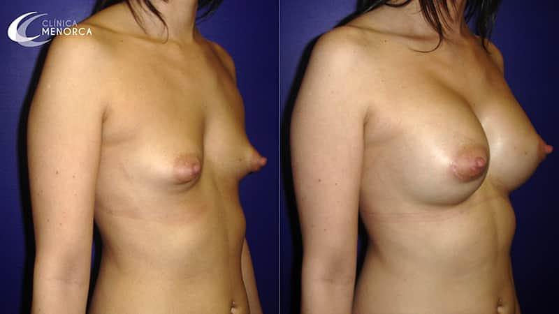 Aumento de pechos antes y después
