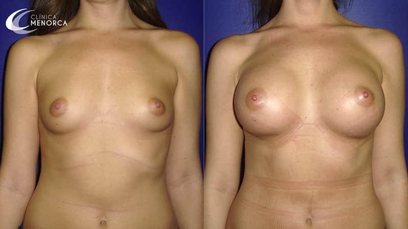 Aumento de mamas antes y después