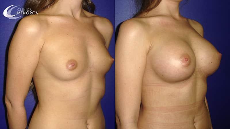 Fotos después de aumento de mamas