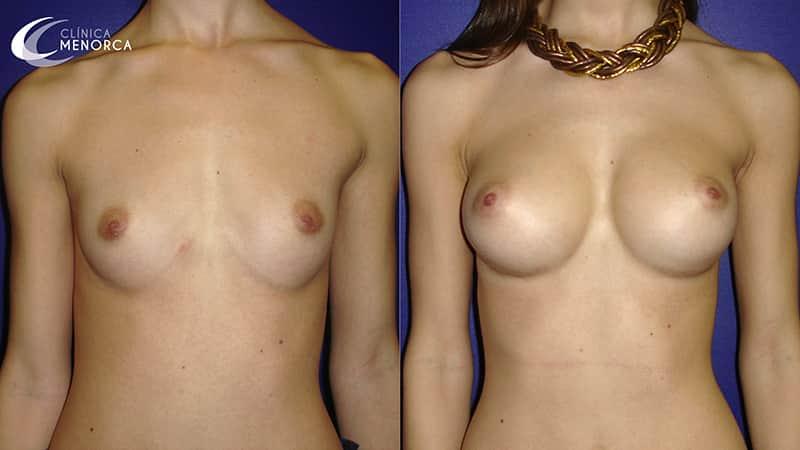 Fotos después de la cirugía de implantes mamarios