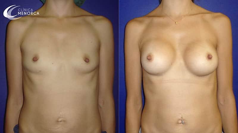 Antes y después de operarme los pechos con el doctor Ángel