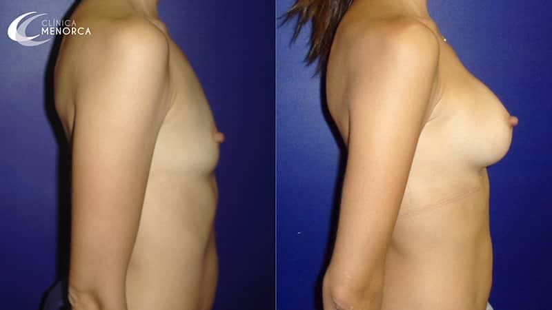 resultado aumento de pechos en clínica menorca