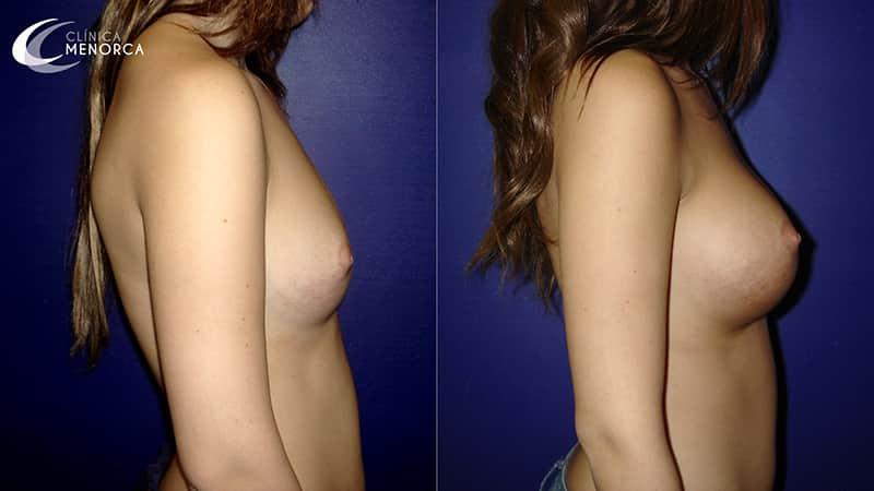fotos antes y despues de un aumento de pecho