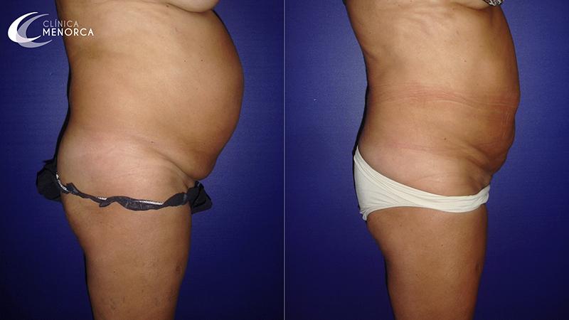 fotos+de+grasa+abdominal+antes+y+después