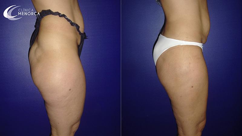 Foto del resultado de una liposucción de caderas