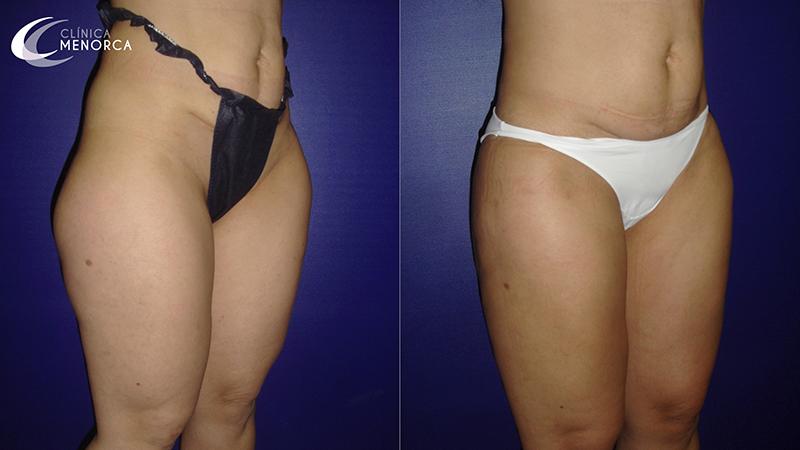 Fotos resultados después de liposucción de caderas