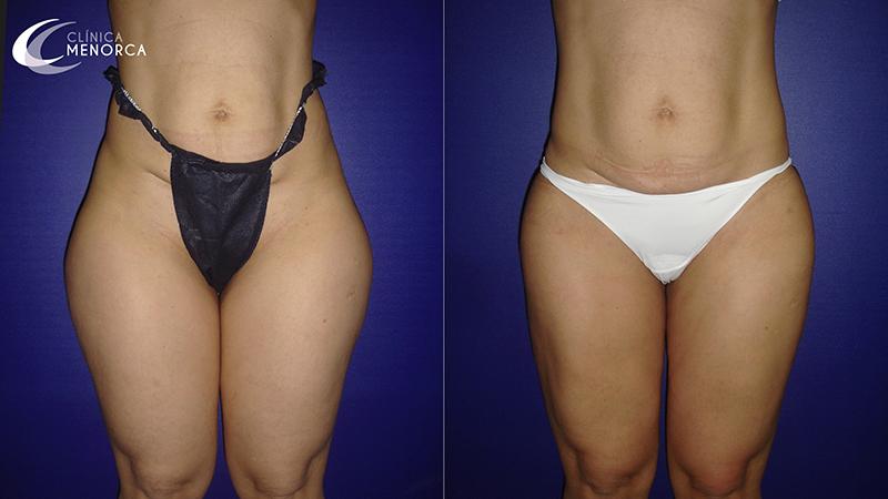 Fotos después liposucción de cartucheras
