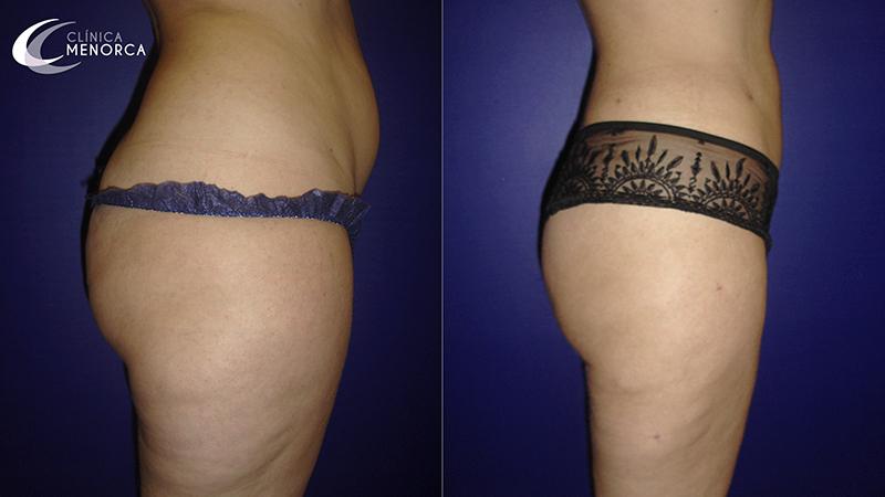 Liposucción en cartucheras antes y después