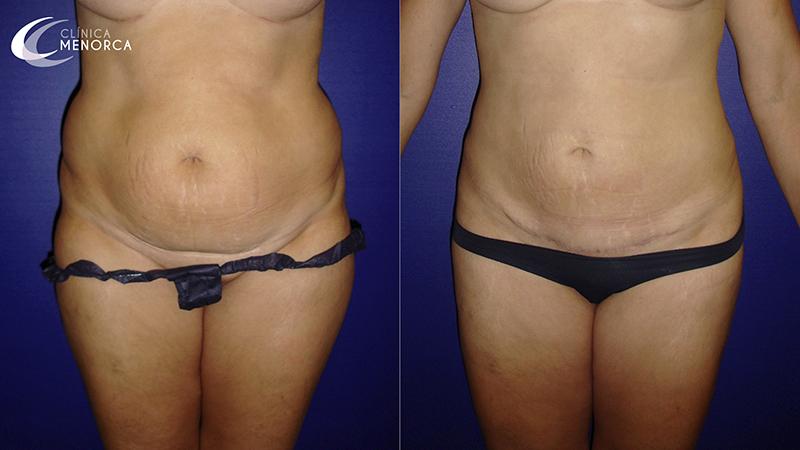 Fotos antes después de lipoescultura y liposucción