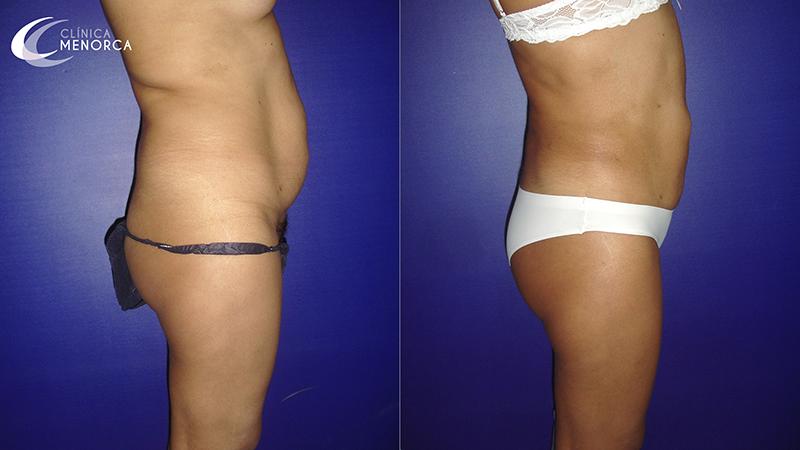 Fotos lipoescultura resultados antes y después