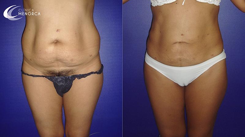 Resultados antes y después de lipoescultura