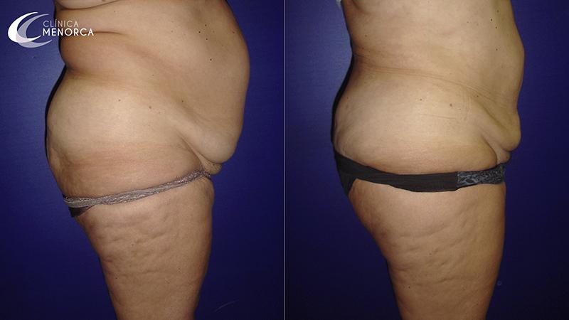 Fotos de antes y después de una lipo