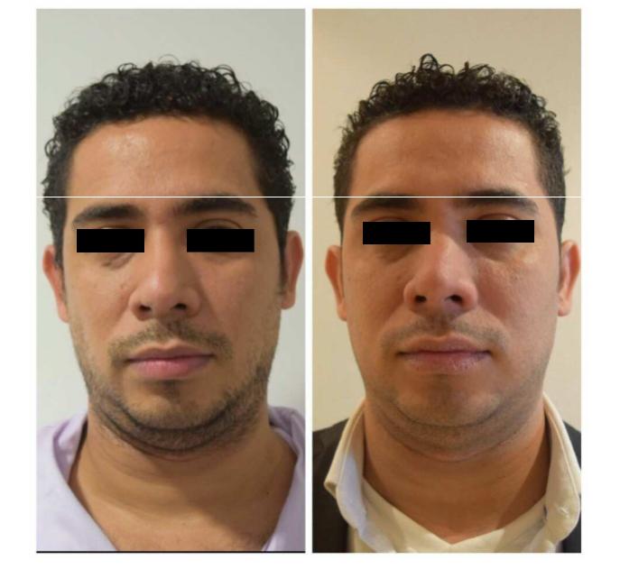 Antes y después de la aplicaci´ón de prostolante en hombres
